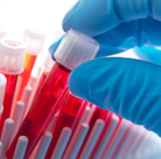 Test Tubes 960x350 Fotolia 30131245 S e1389305058174 Register for a Chance to Win a FREE Hormone Test